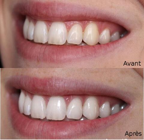 avant après usage curcuma sur les dents